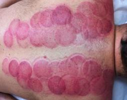 Schröpfen, Cupping, TCM, Rückenschmerzen