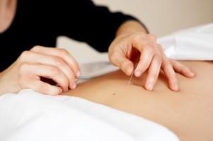 Akupunktur Koblenz Heilpraktiker